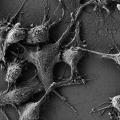 Учени са открили, наночастици, които защитават организма от радиация.