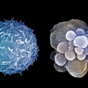 Почистване на клетките спасява от атеросклероза