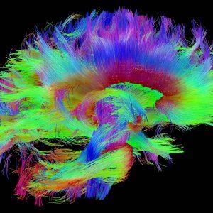 Идентификация на личността по отпечатъците на мозъка